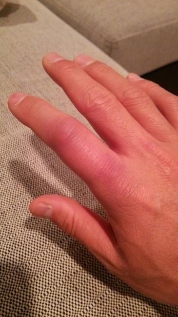 DB受けて腫れた指。